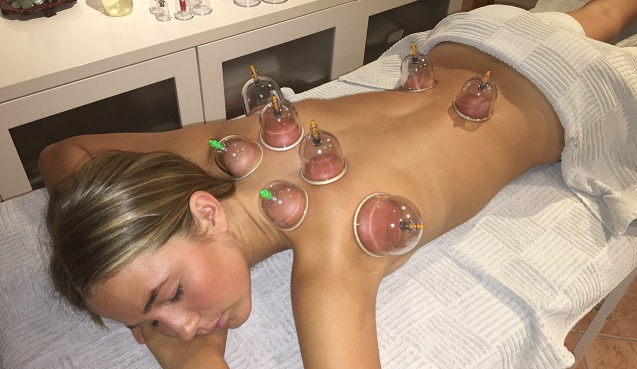 cupping-nystr